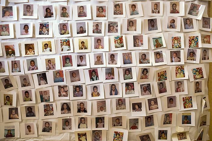 Ablazioa jasan duten emakumeen argazkiak. ©Unicef / EFE