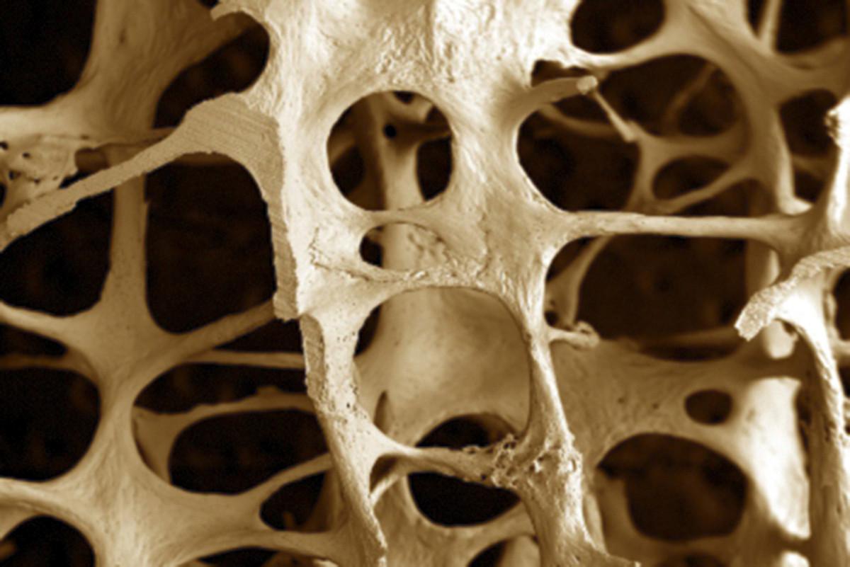 Osteoporosiak hezurrak haustea eragiten du. ©BERRIA