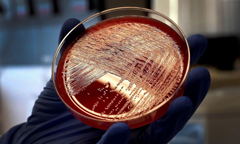 Ikertzaile bat listeriosia eragiten duen bakterioa atzemateko azterketa bat egiten, laborategi batean. ©C. MOYA / EFE